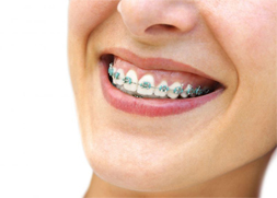 Conventional Braces (Metal)
