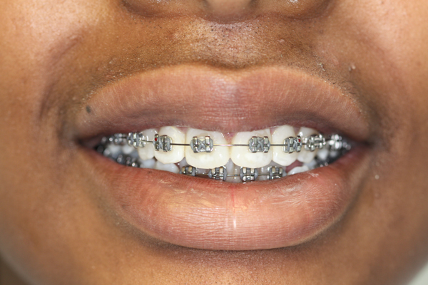 Conventional Braces Essex Dental Solutions